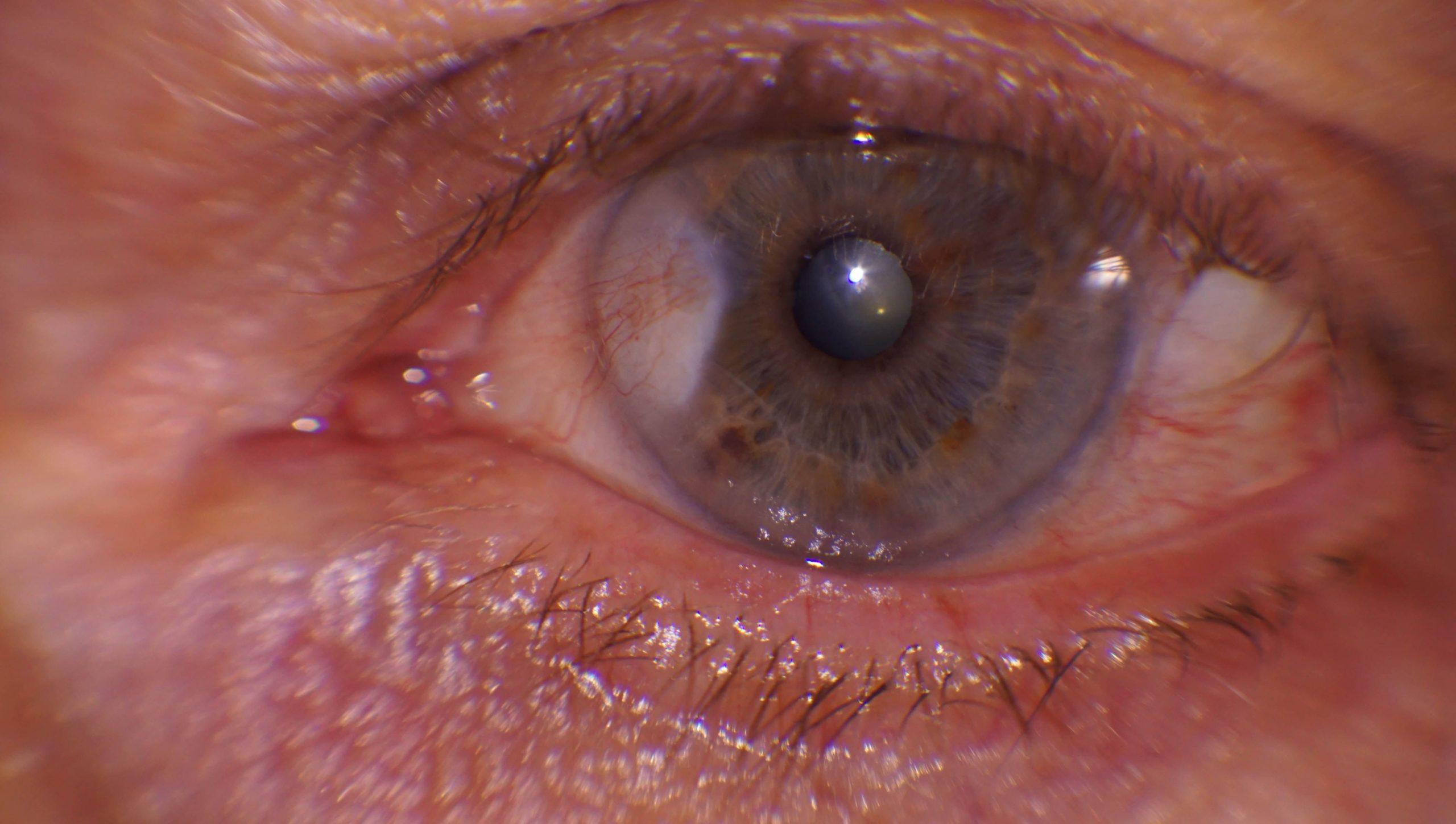 Rocío Villena, vencedora del 1er Concurso de Fotografía para Ópticos-Optometristas de CIONE